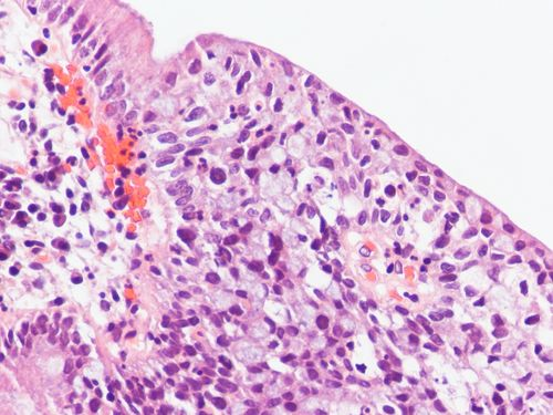 Cervical Adenocarcinoma-In-Situ, Stratified Type